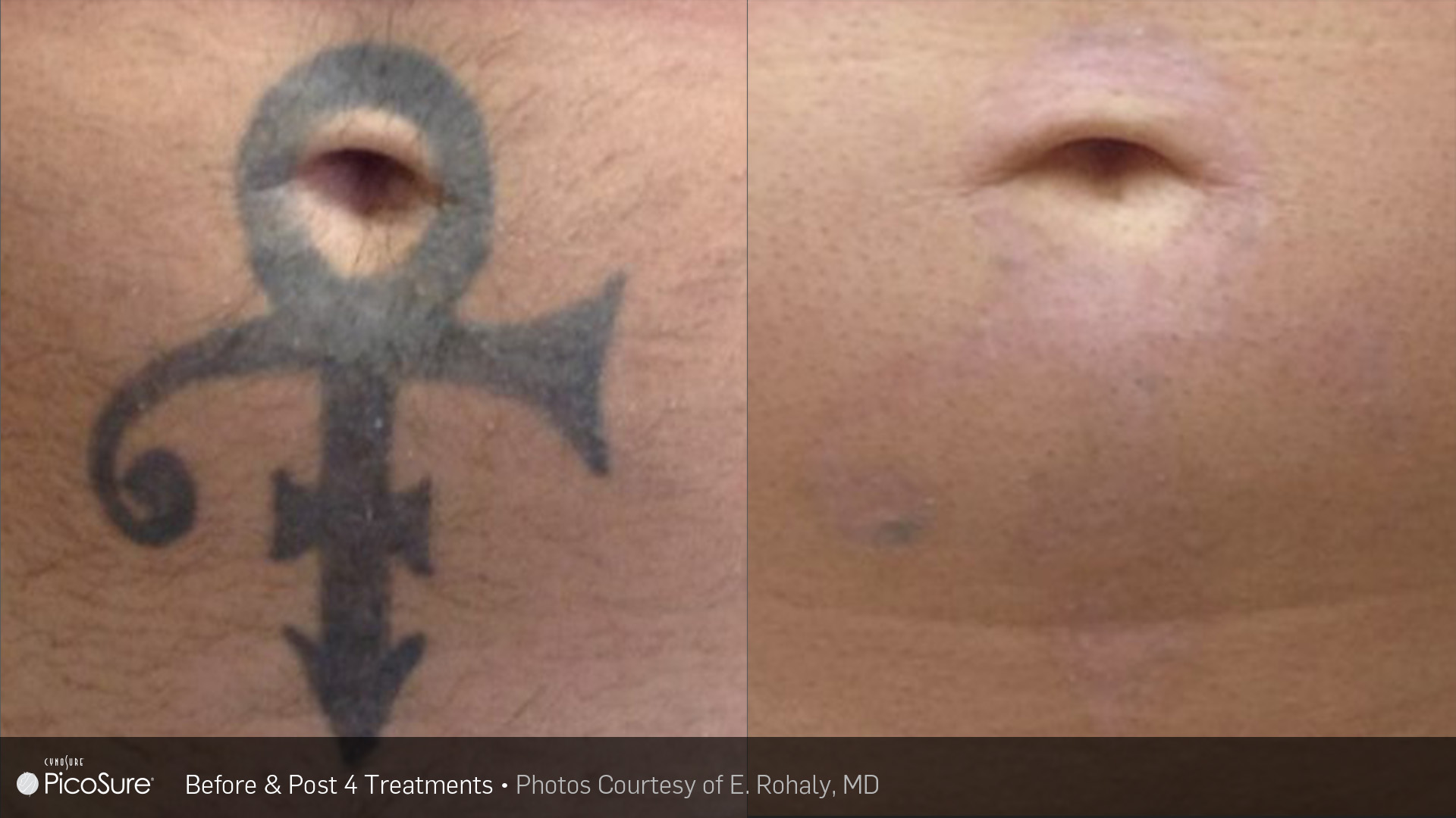 Laser Ink Picosure Laser Tattoo Removal Specialists Bedford New