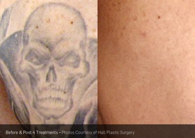 Tattoo-removal-laserink12
