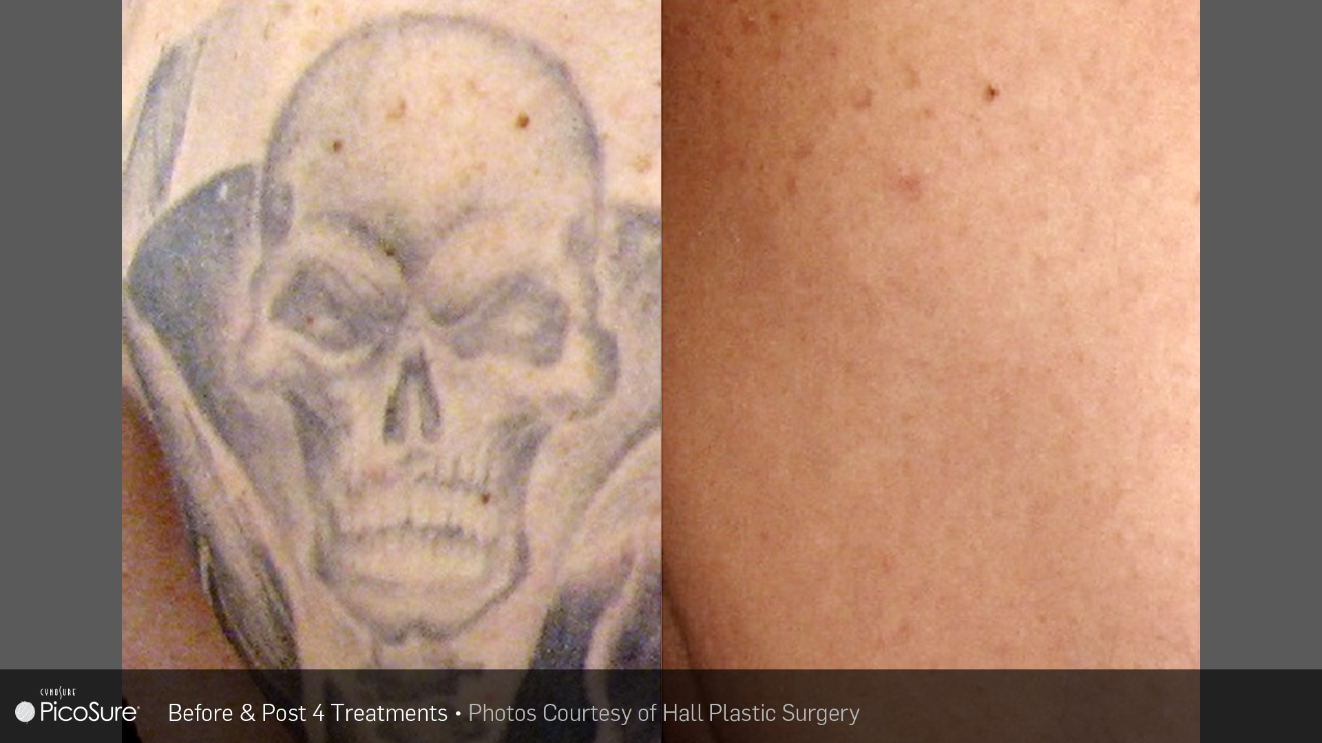 laser ink picosure laser removal specialists
