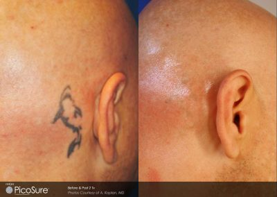 Behind ear laser tattoo removal