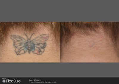 Tattoo-removal-laserink6