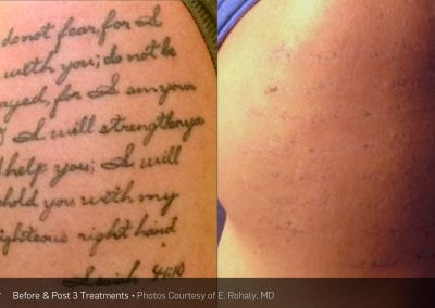 Large tattoo - PicoSure Laser tattoo removal