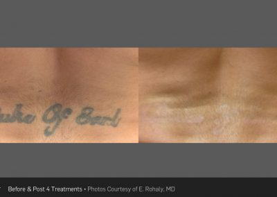 tattoo removal - Picosure Laser Tattoo Removal system