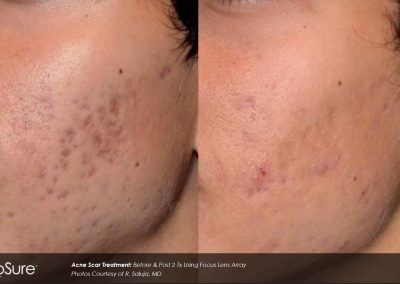 acne-scar-reduction-nh-1