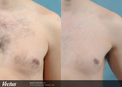 Vectus Laser Chest hair removal