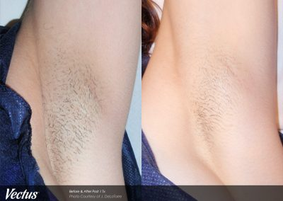 Underarm hair removal with Vectus laser technology