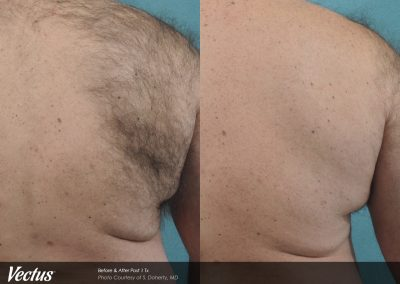 Back hair removal with Vectus laser technology