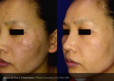 Laser dark spot removal