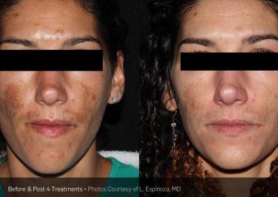 PicoSure Laser Acne Scar Removal