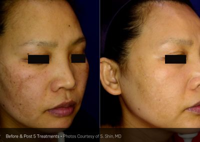 PicoFacial Laser facial treatment