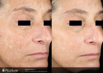 laser-skin-rejuvination-3