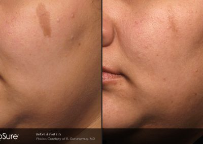 Laser dark spot removal before and after