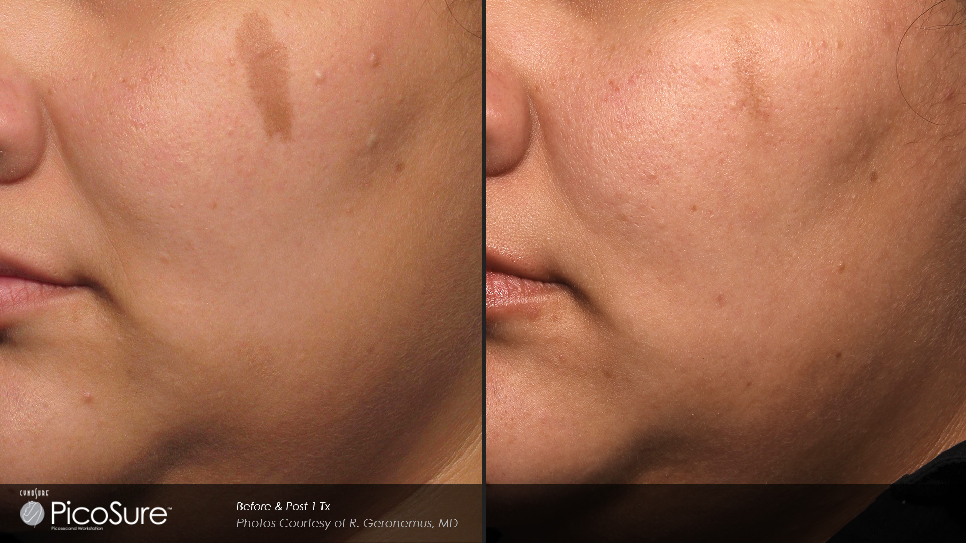 Laser facial rejuvination