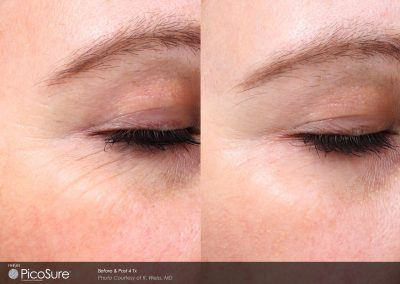 Before and after laser wrinkle reduction