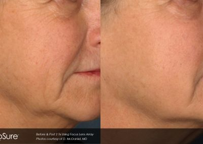 PicoSure laser wrinkle removal