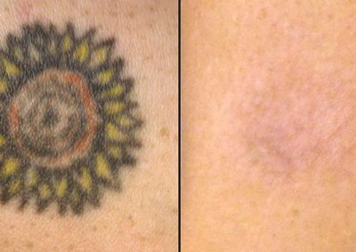 tattoo-removal-before-and-after-2