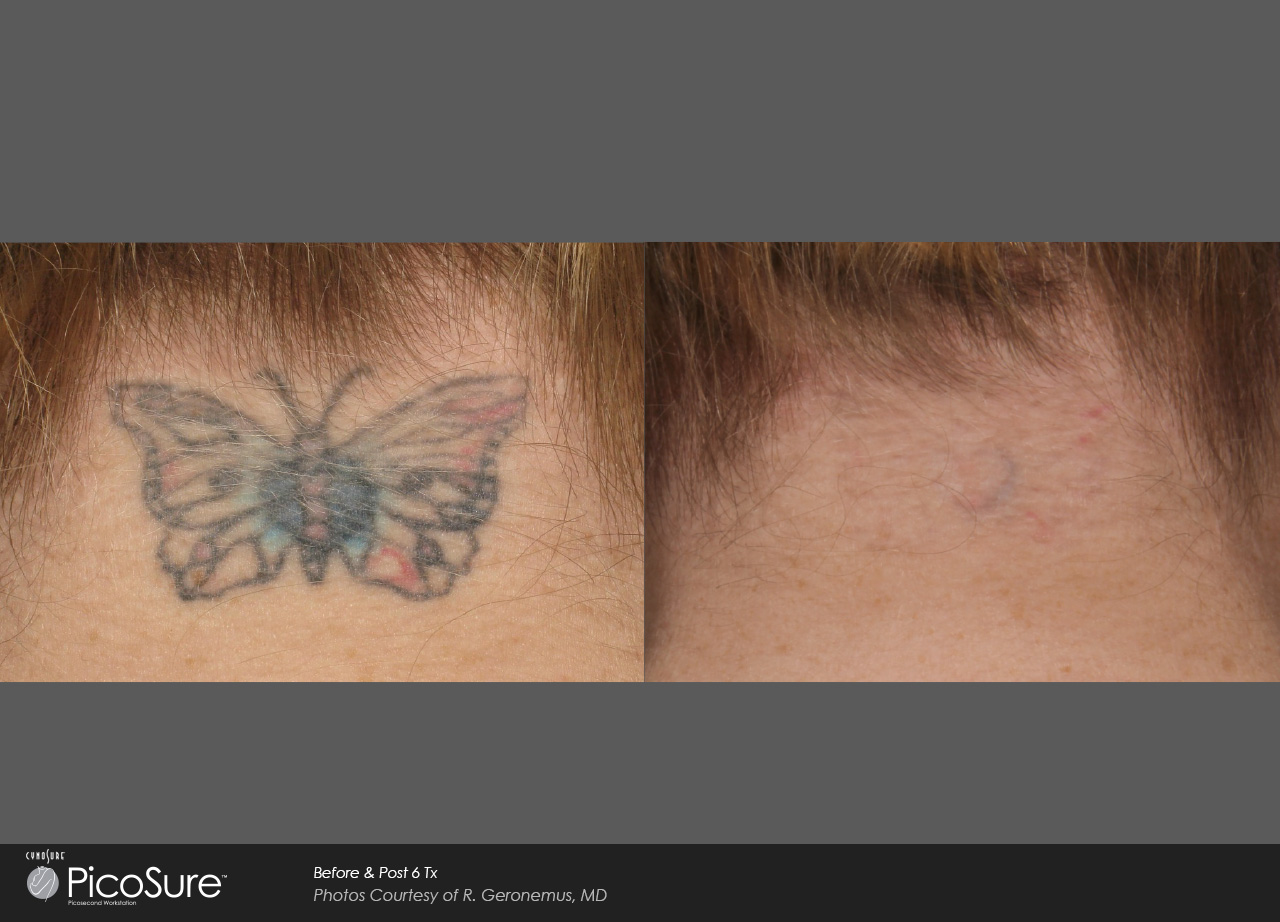 Permalink to What To Expect From Tattoo Removal